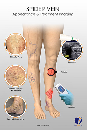 how to get rid of trapped blood after sclerotherapy